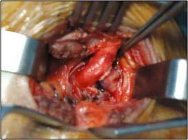 Figure 4. Anastomose termino-latérale entre l'artère sous-clavière et la carotide primitive.