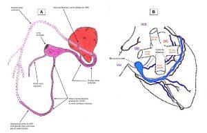 Figure 10. Architecture globale du réseau veineux coronaire humain et rapports avec les principaux éléments anatomiques du cœur.