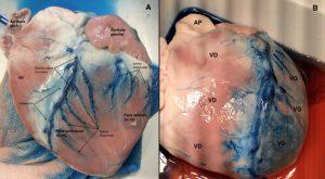 Figure 12. Distribution ventriculaire de surface du réseau veineux coronaire après injection rétrograde de bleu de méthylène dans le sinus coronaire et ligature de la veine azygos gauche.
