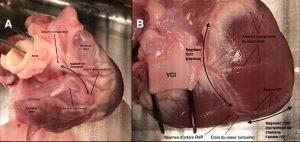 Figure 6. Figure 6A : Segment 1 (CD1) de l'artère coronaire droite et mise en évidence de l'artère du nœud sinusal. Figure 6B : Trajet des segments 2 (CD2) et 3 (CD3) de l'artère coronaire droite.