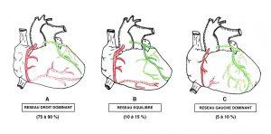 Figure 8. Variations de dominance de réseau coronaire artériel chez l'homme.
