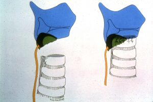 Procédure de Pearson pour sténose sous-glottique permettant de préserver l'intégrité des nerfs récurrents laryngés (Courtoisie de FG Pearson).