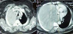 Figure 1. Tomodensitométrie thoracique avec injection de produit de contraste montrant une masse de nature tissulaire occupant tout l'hémichamp thoracique droit, refoulant le poumon ainsi que le diaphragme, avec compression de la trachée et des bronches souches qui sont complètement refoulées vers le côté gauche, ainsi que les gros vaisseaux du médiastin.