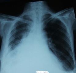 Figure 2. Radiographie thoracique de face en postopératoire qui montre une bonne évolution avec retour du poumon à la paroi.