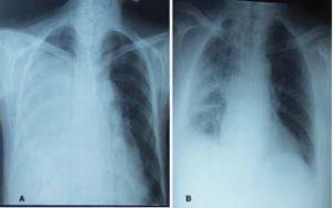 Figure 3 A. La radiographie thoracique de face en faveur d'une opacité occupant presque l'hémichamp pulmonaire droit avec déviation des structures médiastinale. B. La radiographie thoracique faite à J+13 du postopératoire montrant un retour du poumon à la paroi.