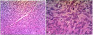 Figure 7 A (HES X 100). Prolifération fusocellulaire disposée en nappe diffuse. B (HES X 400). Les cellules tumorales sont dotées de noyaux ovalaires, peu atypiques, avec un cytoplasme peu abondant éosinophile.