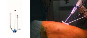 Figure 2. Le vidéothoracoscope de 30°-10 mm, la pince autocoupante parenchymateuse articulée ainsi que la pince fenêtrée sont introduits par la même incision. L'articulation de la pince autocoupante ainsi que les 30 degrés de l'optique permettent de reproduire la triangulation (schéma de gauche, l'étoile bleue représentant la cible à réséquer).