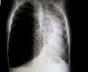 Figure 1. Aspect radiographique de l'emphysème lobaire congénital.