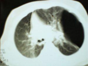 Figure 3. Emphysème lobaire congénital du lobe supérieur gauche avec déplacement des éléments du médiastin et un aspect de hernie du poumon atteint (scanner thoracique).