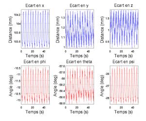 Figure 5. Graphes des amplitudes des écarts dans les six degrés de liberté (patient 1) en ventilation normale, avec filtrage à une fréquence de coupure de 120 bat/min.